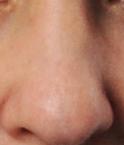 Nasenkorrektur Frau
