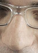 Nasenverkleinerung Hyaluron